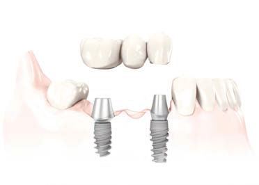 Implants dentaires: Remplacement partiel ou complet